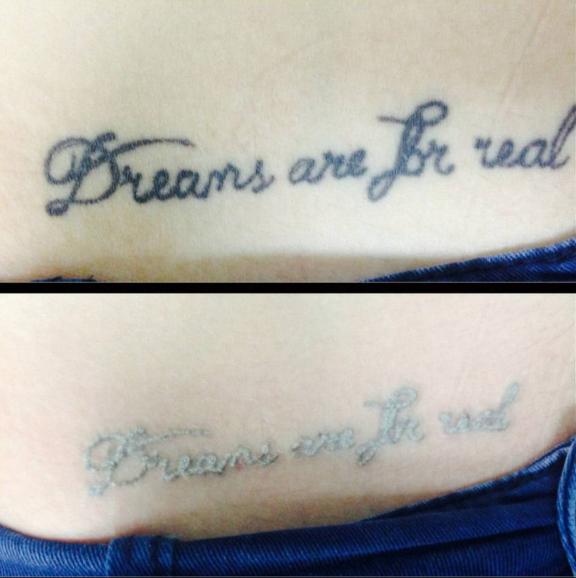 Лазерное удаление тату - мастер Макс Корж