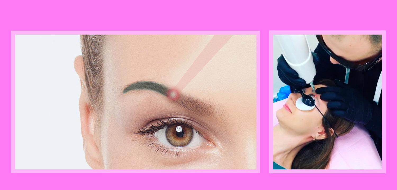 Лазеры для удаления татуировок и перманентного макияжа
